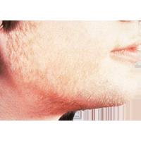 Санаторий выпадение волос