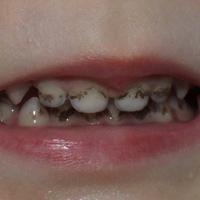 Черный налет на языке и на зубах