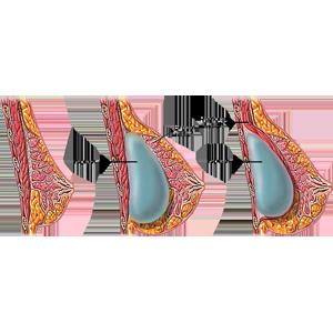 Основные правила увеличения груди