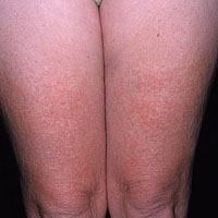 Энтеровирусная инфекция у взрослых фото