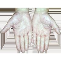 Симптомы и начальная стадия заболевания