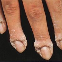 Лаки от грибка ногтей у детей