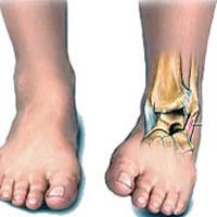 Инсульт паралич ног лечение
