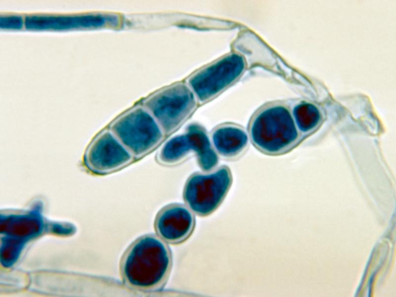 Quale pillola prendere contro un fungo di posizione di unghie
