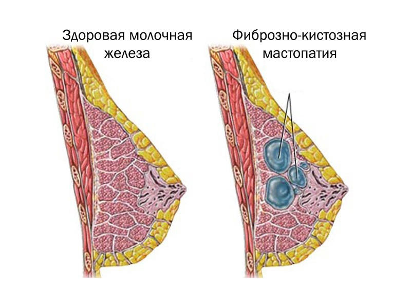 Беременность и фиброаденома в груди