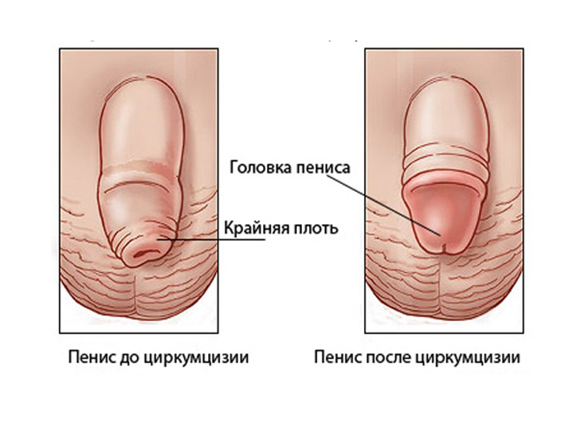 средний размер пениса в россии Спасск-Дальний