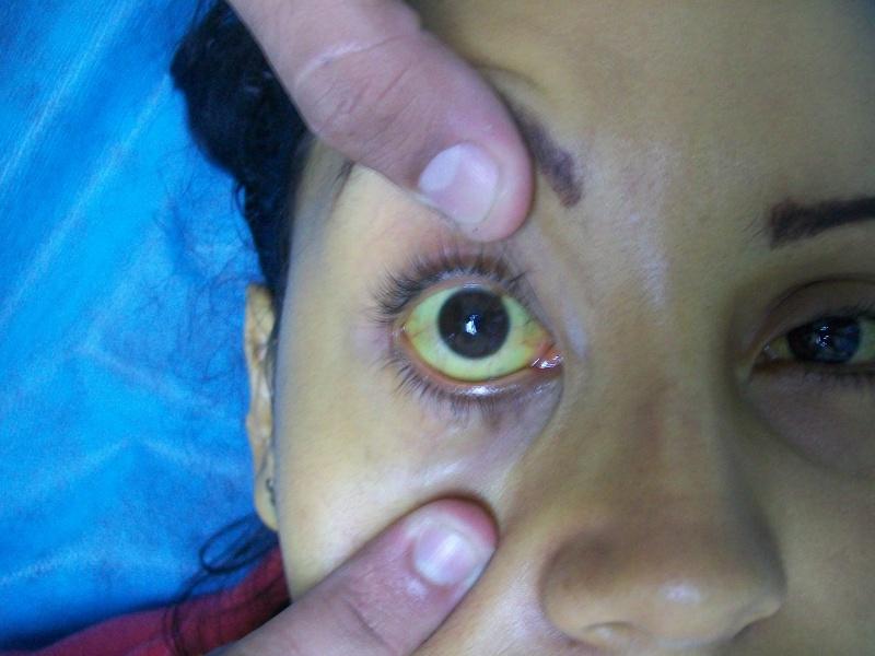 Симптомы триперной болезни