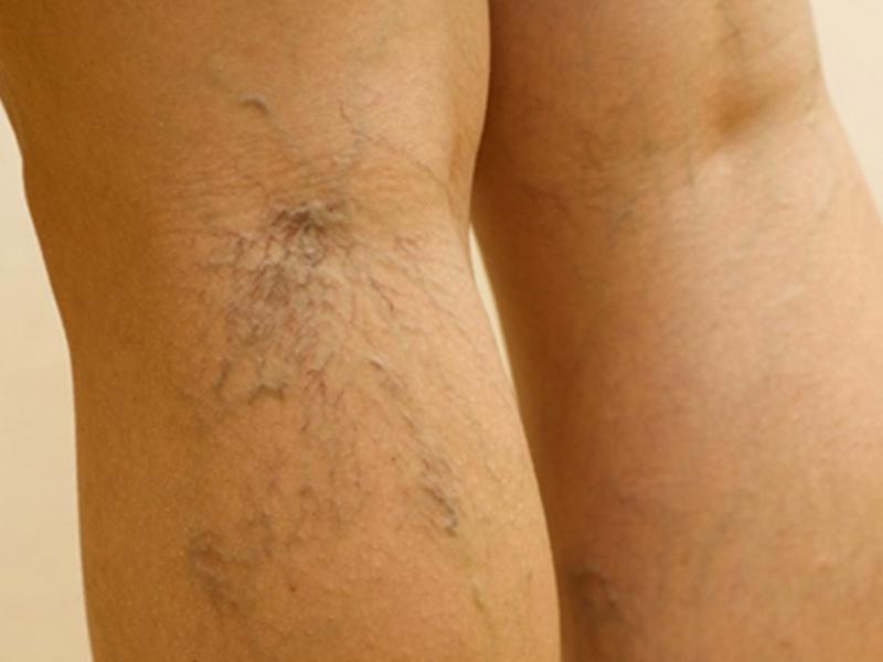 Варикозное расширения вен на яичках в мальчиков