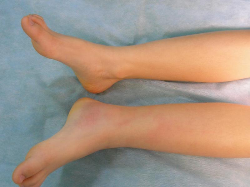 средства от остеохондроза коленного сустава