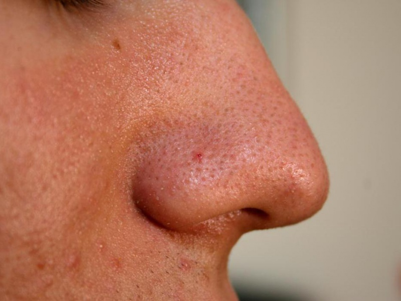 Сузить поры в домашних условиях на носу